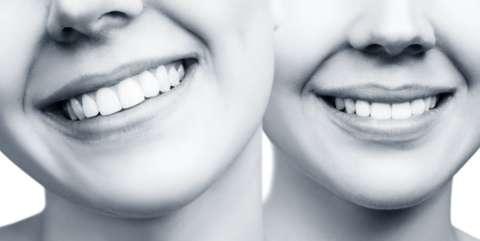Facette dentaire Paris Dentiste