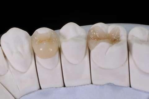 Inlays et Onlays Dentiste Paris 7