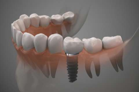 Implants dentaires Paris